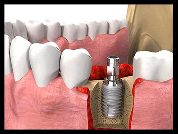 IMPLANT TREATMENT